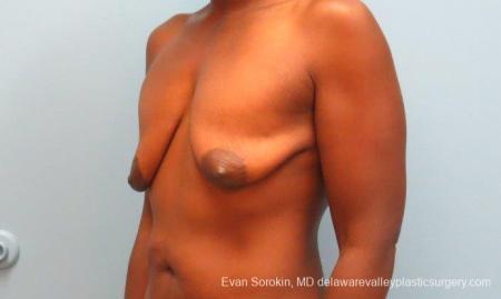 Philadelphia Breast Lift and Augmentation 10120 - Before Image 3