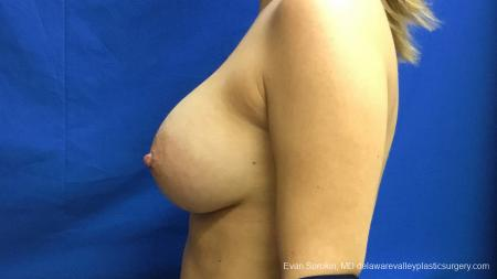 Philadelphia Breast Augmentation 13173 -  After Image 5