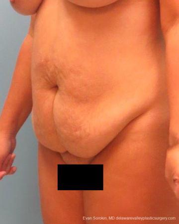 Philadelphia Abdominoplasty 9267 - Before Image 4