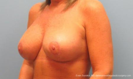 Philadelphia Breast Lift and Augmentation 9398 -  After Image 4