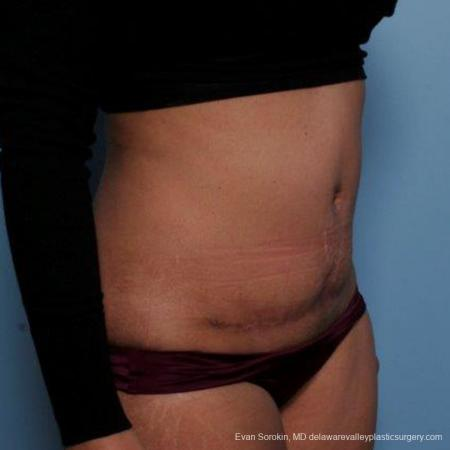Philadelphia Abdominoplasty 9479 -  After Image 2