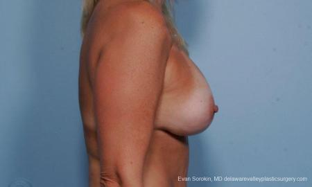 Philadelphia Breast Lift and Augmentation 9375 -  After Image 3