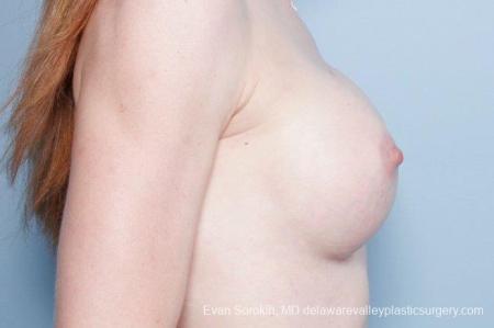 Philadelphia Breast Augmentation 9169 -  After Image 3