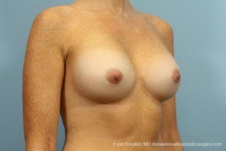 Philadelphia Breast Augmentation 8654 -  After Image 2