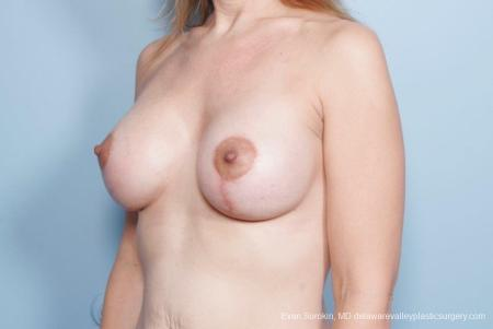 Philadelphia Breast Lift and Augmentation 8685 -  After Image 3