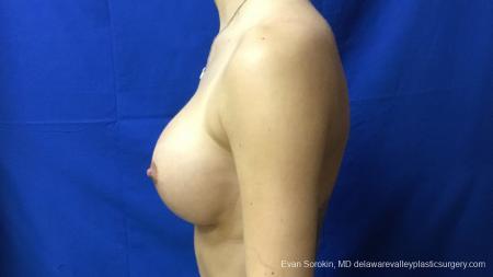Philadelphia Breast Augmentation 13177 -  After Image 5