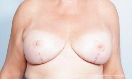 Philadelphia Breast Lift and Augmentation 9431 -  After Image 1