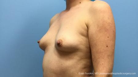 Philadelphia Breast Augmentation 13181 - Before Image 4