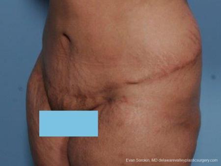 Philadelphia Abdominoplasty 9462 -  After Image 4