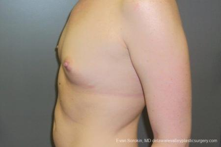 Philadelphia Breast Augmentation 8669 - Before and After Image 5