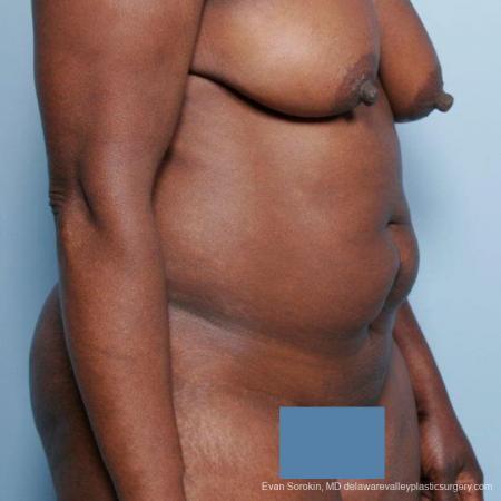 Philadelphia Abdominoplasty 9477 - Before Image 2