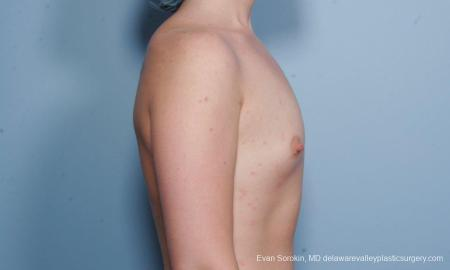 Philadelphia Breast Augmentation 9176 - Before and After Image 5