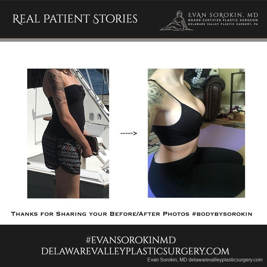 Real Patient Stories: Patient 12 - Before and After Image 1