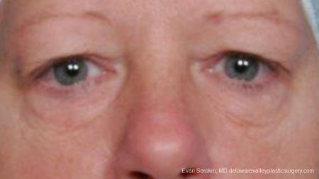Philadelphia Blepharoplasty 9314 - Before Image