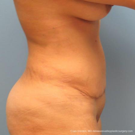 Philadelphia Abdominoplasty 9478 -  After Image 5