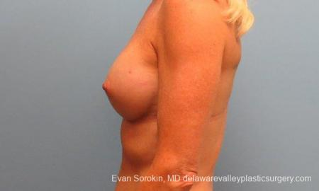 Philadelphia Breast Augmentation 9415 -  After Image 5