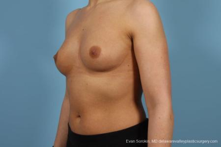 Philadelphia Breast Augmentation 8643 - Before Image 4