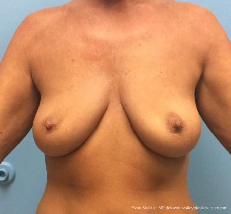 Philadelphia Breast Lift and Augmentation 13068 - Before Image 1