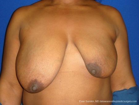 Philadelphia Breast Lift and Augmentation 8684 - Before Image 1