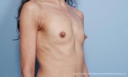 Philadelphia Breast Augmentation 9424 - Before Image 2