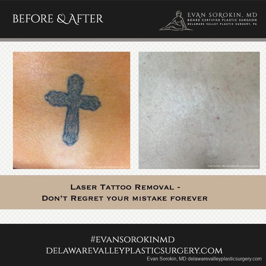 Philadelphia Tattoo Removal 8646 - Before and After Image