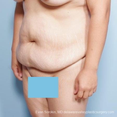 Philadelphia Abdominoplasty 8678 - Before and After Image 3