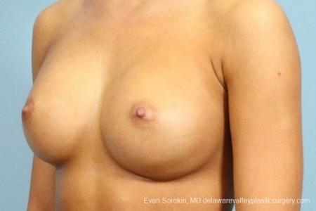 Philadelphia Breast Augmentation 8769 -  After Image 3