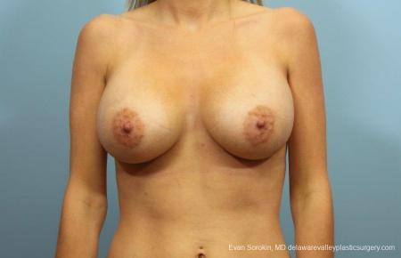 Philadelphia Breast Augmentation 9105 -  After Image 1