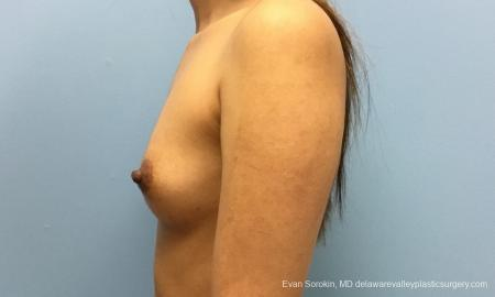 Philadelphia Breast Augmentation 12515 - Before and After Image 5