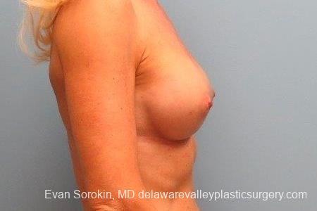 Philadelphia Breast Augmentation 8770 -  After Image 4