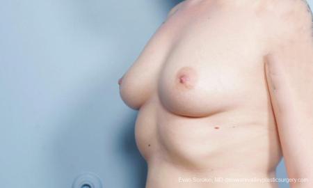 Philadelphia Breast Augmentation 9419 - Before Image 4