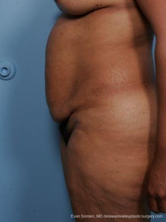 Philadelphia Abdominoplasty 9461 - Before and After Image 5