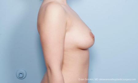 Philadelphia Breast Augmentation 9172 - Before Image 3