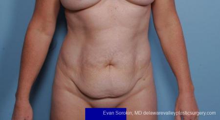 Philadelphia Abdominoplasty 9315 - Before Image 1
