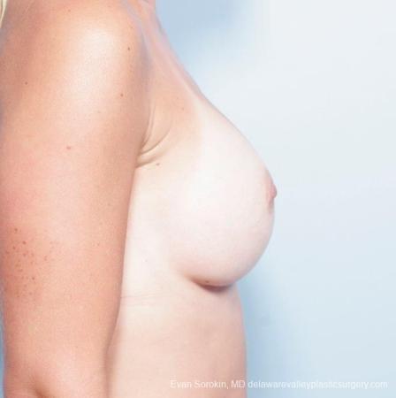 Philadelphia Breast Augmentation 8652 -  After Image 4