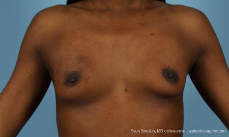 Philadelphia Breast Augmentation 8655 - Before Image