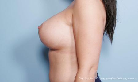 Philadelphia Breast Augmentation 9172 -  After Image 5