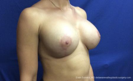 Breast Lift And Augmentation: Patient 42 - After Image 2
