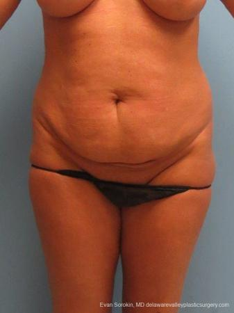 Philadelphia Abdominoplasty 9463 - Before Image 1