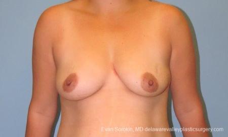 Philadelphia Breast Lift and Augmentation 10123 - Before Image 1
