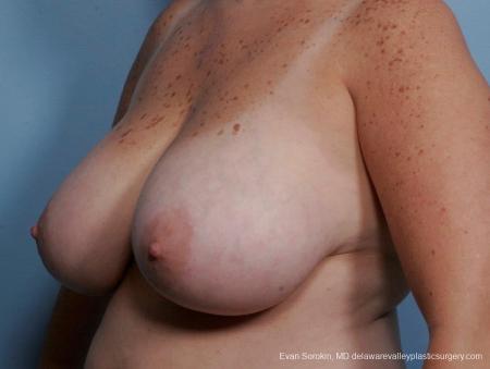 Philadelphia Breast Reduction 8703 - Before Image 3