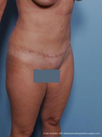 Philadelphia Abdominoplasty 9460 -  After Image 2