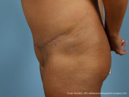 Philadelphia Abdominoplasty 9471 -  After Image 5