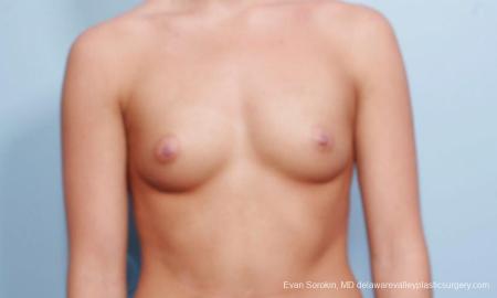 Philadelphia Breast Augmentation 9423 - Before Image 1