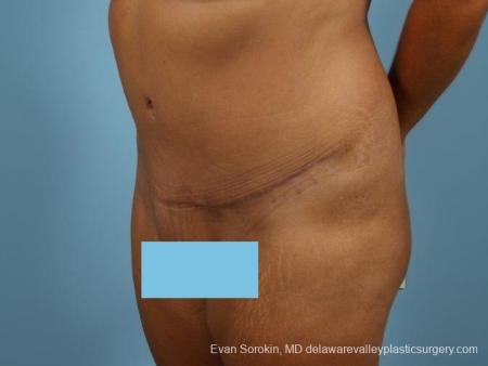 Philadelphia Abdominoplasty 8700 -  After Image 3