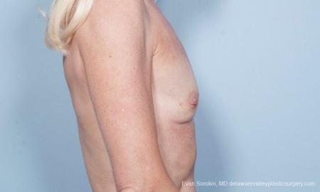 Philadelphia Breast Augmentation 9415 - Before Image 3
