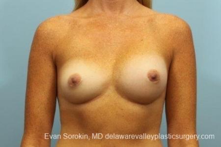 Philadelphia Breast Augmentation 8654 - Before Image 1