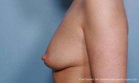 Philadelphia Breast Augmentation 9372 - Before and After Image 5