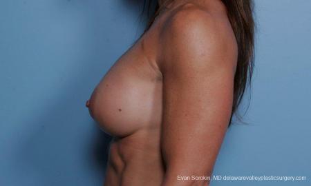 Philadelphia Breast Augmentation 9455 -  After Image 5