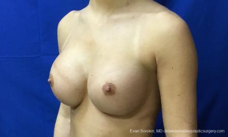 Philadelphia Breast Augmentation 10816 -  After Image 4